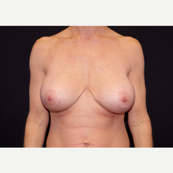 35-44 year old woman treated with Breast Implants after 3441158