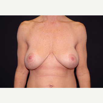 35-44 year old woman treated with Breast Implants before 3441158