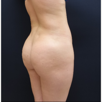 25-34 year old woman treated with Butt Lift using 712cc Round Silicone Implants before 3259569