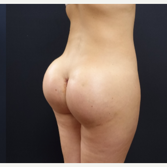 25-34 year old woman treated with Butt Lift using 712cc Round Silicone Implants after 3259569