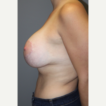 25-34 year old man treated with Breast Lift after 3129112