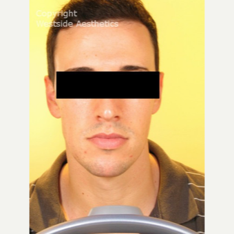 Non Surgical Chin Enhancement on Young Man after 2955310