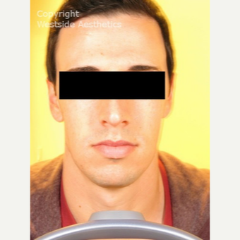 Non Surgical Chin Enhancement on Young Man before 2955310
