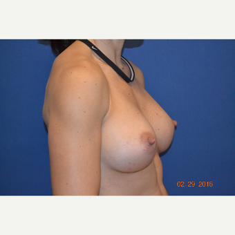 35-44 year old woman treated with Breast Augmentation after 3664011