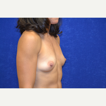 35-44 year old woman treated with Breast Augmentation before 3664011