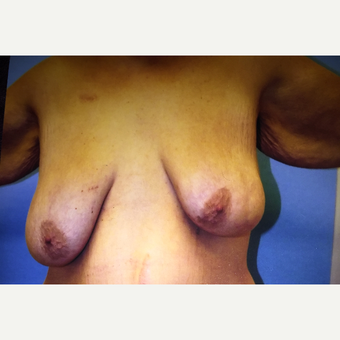 55-64 year old woman treated with Breast Lift before 3333474