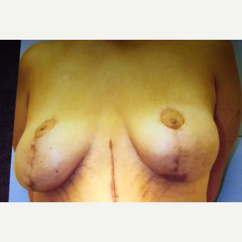55-64 year old woman treated with Breast Lift after 3333474