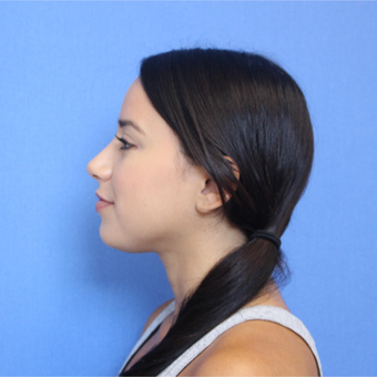 25-34 year old woman treated with Rhinoplasty after 3377751