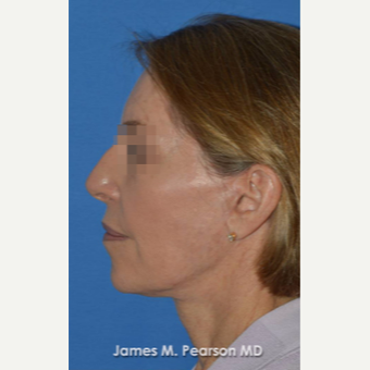 55-64 year old woman treated with Facelift after 3814875