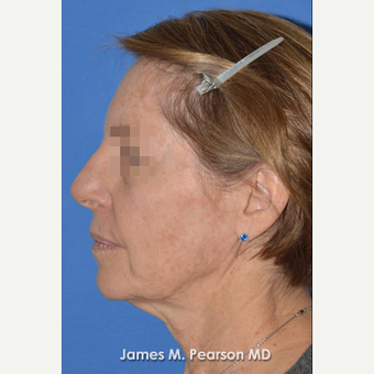 55-64 year old woman treated with Facelift before 3814875