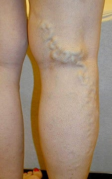 Varicose Vein Treatment Photographs before 914973