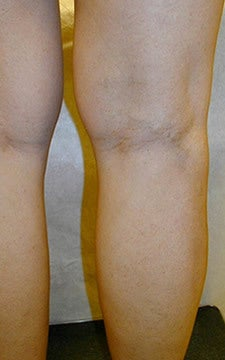 Varicose Vein Treatment Photographs after 914973