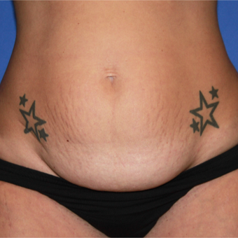 25-34 year old Mom treated with Tummy Tuck before 3459307