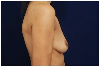 Breast Augmentation before 1335377