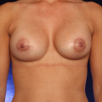 25-34 year old woman treated with Breast Augmentation after 3444456