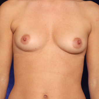 25-34 year old woman treated with Breast Augmentation before 3444456