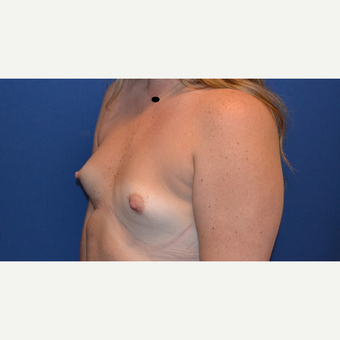 25-34 year old woman treated with Breast Augmentation before 3423494