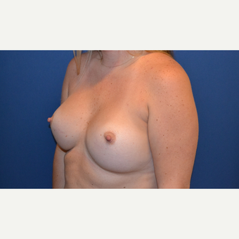 25-34 year old woman treated with Breast Augmentation after 3423494