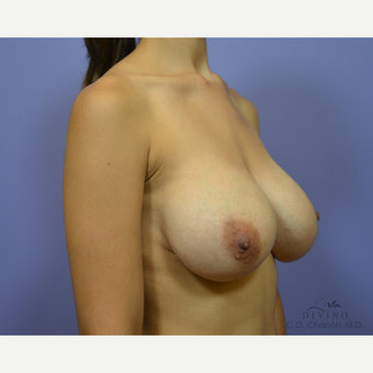 25-34 year old woman treated with Breast Implant Revision after 3421709