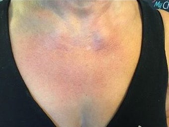 65-74 year old woman treated with Skin Rejuvenation after 3367503