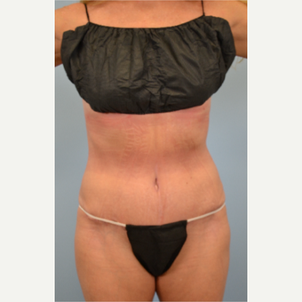 52 year old woman treated with Tummy Tuck after 3432214