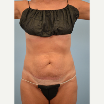 52 year old woman treated with Tummy Tuck before 3432214