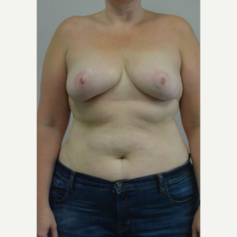 25-34 year old woman treated with Breast Reduction after 3141058