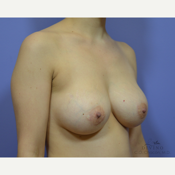 25-34 year old woman treated with Breast Implant Revision before 3421692