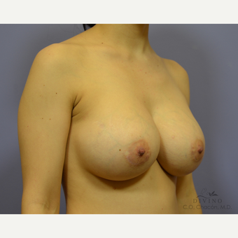 25-34 year old woman treated with Breast Implant Revision after 3421692