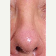Laser used to treat prominent blood vessels in the nose before 2751228