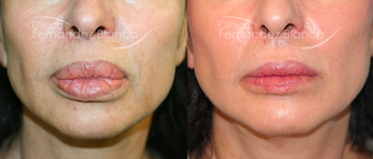 45-54 year old woman treated with Lip Reduction