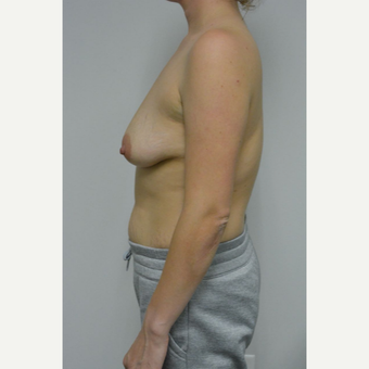 25-34 year old woman treated with Breast Lift with Implants before 3763077