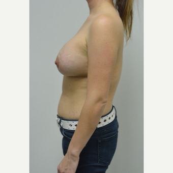 25-34 year old woman treated with Breast Lift with Implants after 3763077