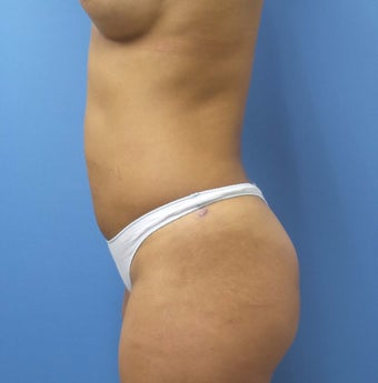 35-44 year old woman treated with Smart Lipo after 3098017