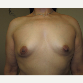 35-44 year old woman treated with Breast Implants before 3129255