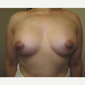 35-44 year old woman treated with Breast Implants after 3129255