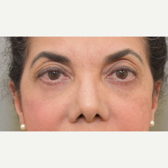 61 year old woman treated with Eye Bags Treatment after 3259435