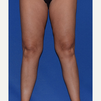 35-44 year old woman treated with Liposuction of Thighs & Calves after 3105101