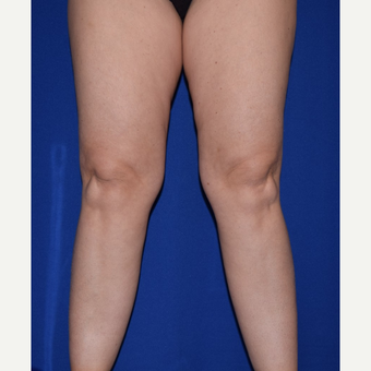 35-44 year old woman treated with Liposuction of Thighs & Calves before 3105101