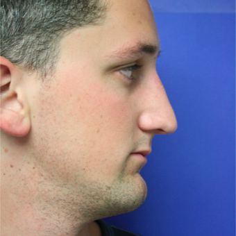 18-24 year old man treated with Rhinoplasty after 3400544