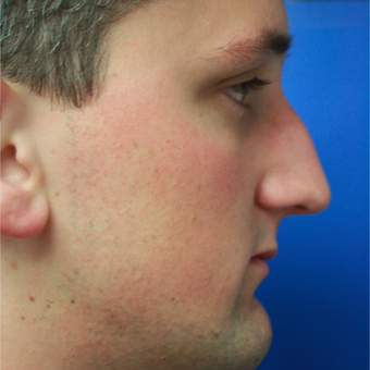 18-24 year old man treated with Rhinoplasty before 3400544