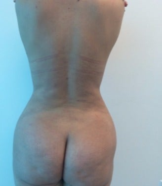 35-44 year old woman treated with Brazilian Butt Lift Revision after 2703405
