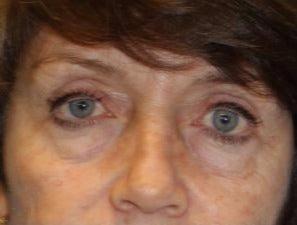 65-74 year old woman treated with Eyelid Surgery before 3467231