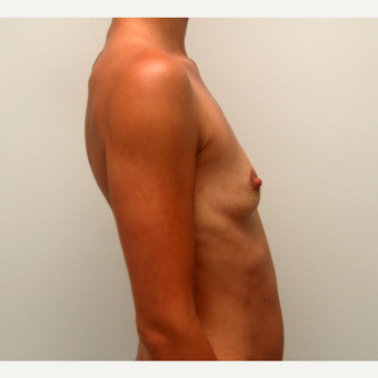 25-34 year old woman treated with Breast Augmentation before 3378606