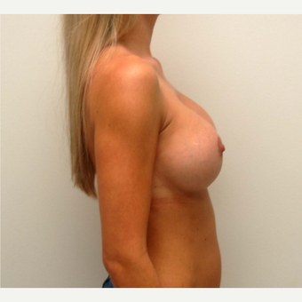25-34 year old woman treated with Breast Augmentation after 3378606