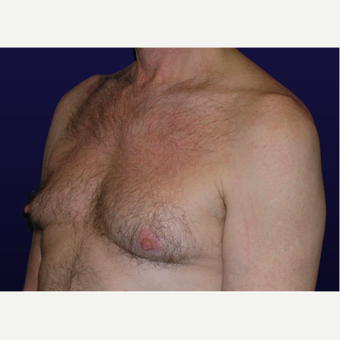 45-54 year old man treated with Male Breast Reduction before 3439659