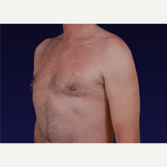 45-54 year old man treated with Male Breast Reduction after 3439659
