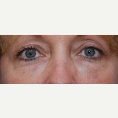 Woman treated with Restylane after 1686493