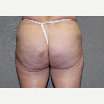 Butt Augmentation after 3252437