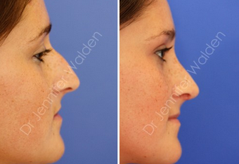 Septorhinoplasty before 1112641